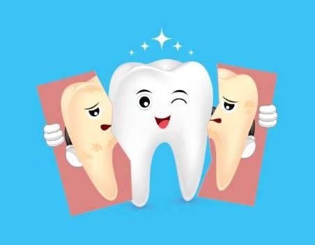 Máng tẩy trắng răng tại nhà và những hậu quả đáng gờm