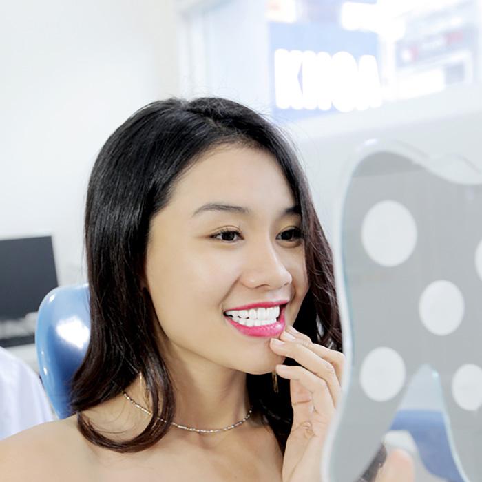 Ưu điểm bọc răng sứ là gì? Có vượt trội so với các loại khác không