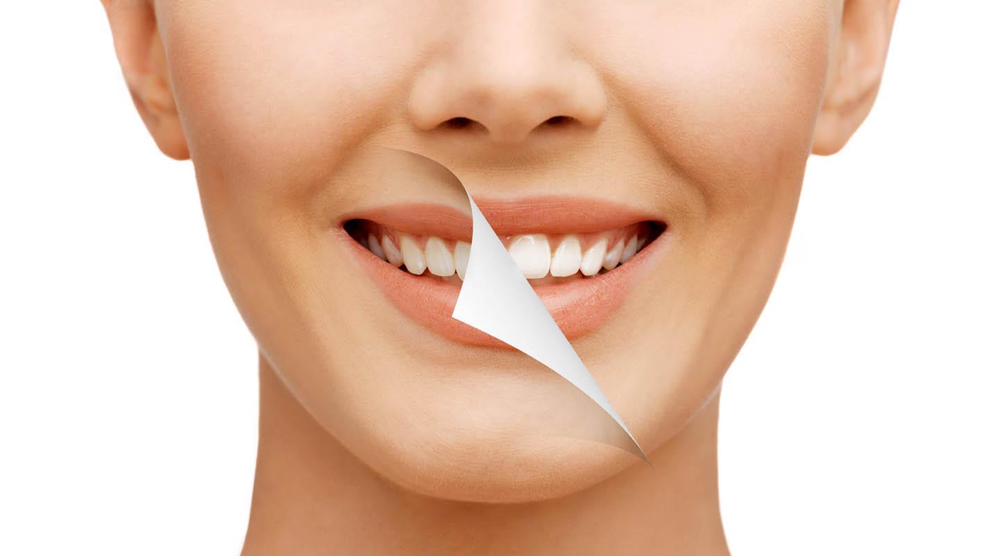 Mão răng sứ là gì? Bọc mão răng sứ giá bao nhiêu?