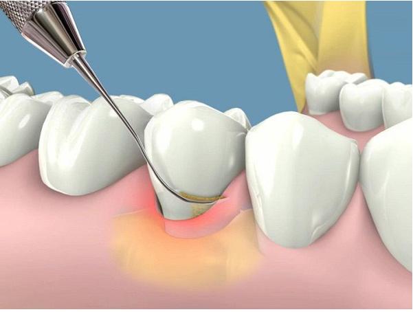 Lấy cao răng có làm trắng răng không?