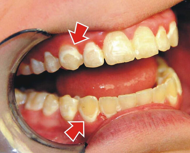 Miếng dán tẩy trắng răng