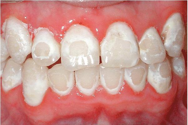 cách làm trắng răng bằng ôxy già, cách làm trắng răng bằng oxy già, làm trắng răng bằng oxy già, cách tẩy trắng răng bằng oxy già, cách làm trắng răng với oxy già, làm trắng răng với oxy già, cách làm trắng răng tại nhà bằng oxy già