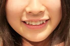 làm sao để có răng khểnh tại nhà, làm thế nào để có răng khểnh tại nhà, cách để có răng khểnh tại nhà