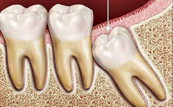 răng số 38, răng số 38 mọc lệch, răng số 38 là răng nào, nhổ răng số 38 hết bao nhiêu tiền, nhổ răng số 38, răng khôn số 38, vị trí răng số 38, nhổ răng khôn số 38