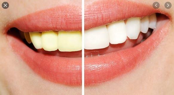 Răng trắng sau khi tẩy giữ được bao lâu?
