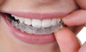 tẩy trắng răng có hại không, tẩy trắng răng có hại gì không, tẩy trắng răng có hại hay không